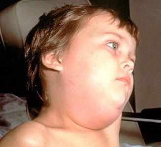 mumps_symptoms1
