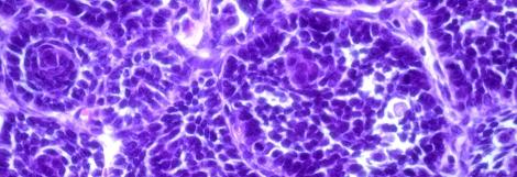 07_NG-DTG-02-P162_tumor_40x