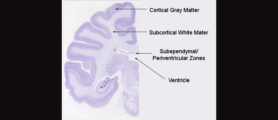 Subcortical Band Heterotopia And 3 Subcortical Band