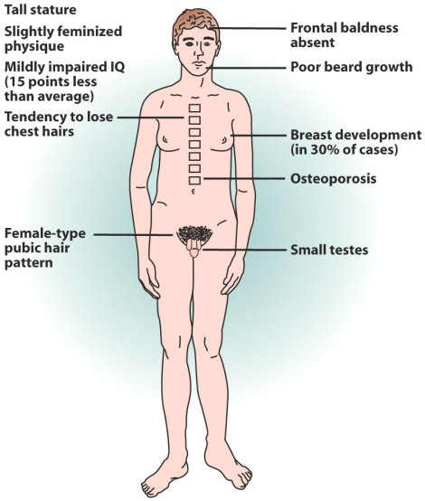 syndrome-klinefelter-14504_2