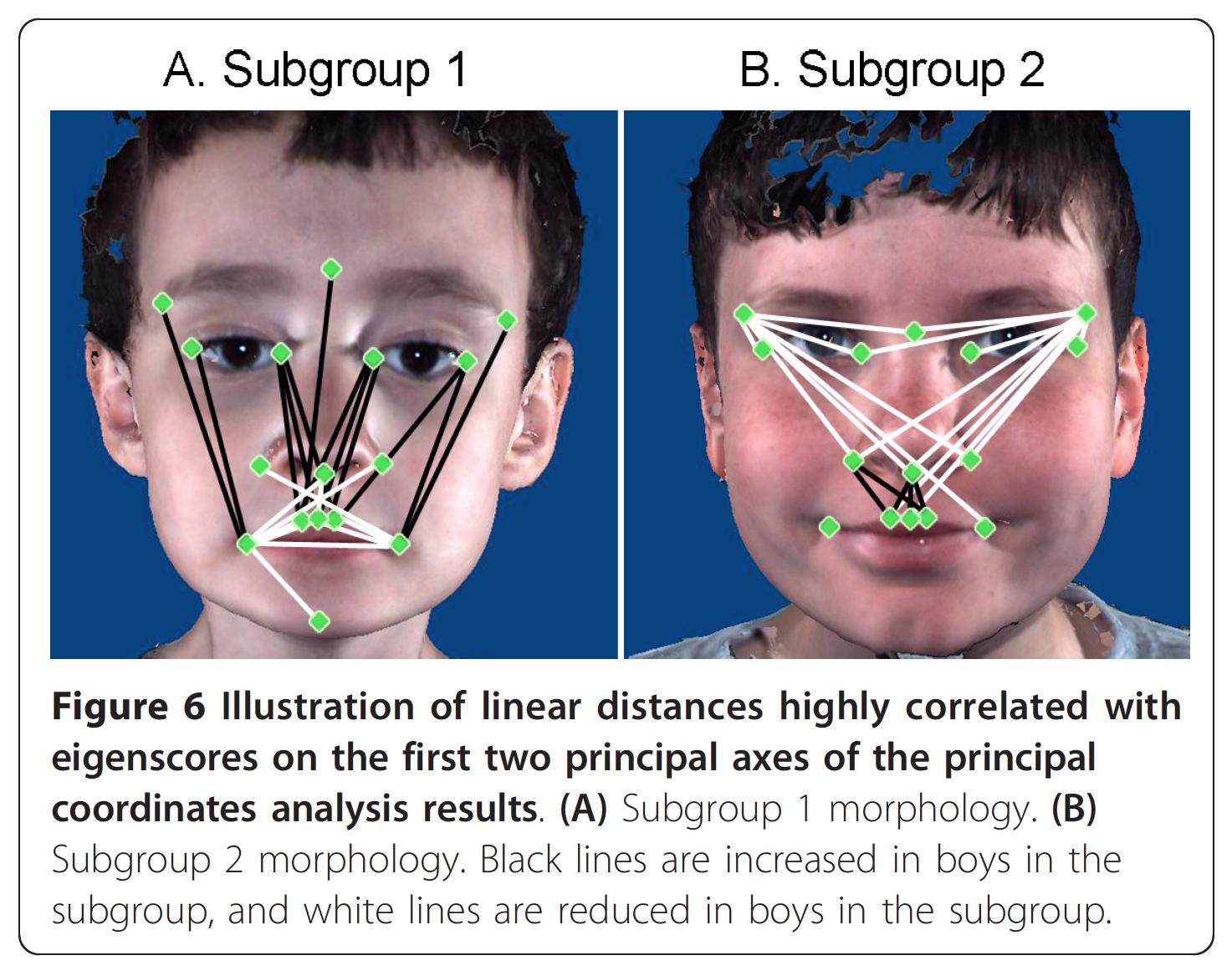 Facial characteristics of autism