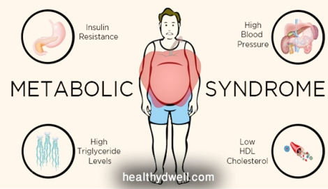Metabolic-Syndrome-definition