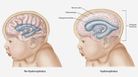 Hydrocephalus-In-Infants